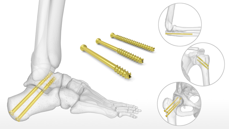 Fixation of The Cancellous Bone in Orthopedic Surgery