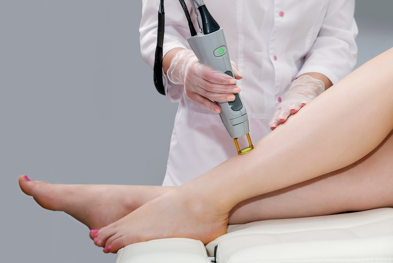 How does hair removal by laser work out